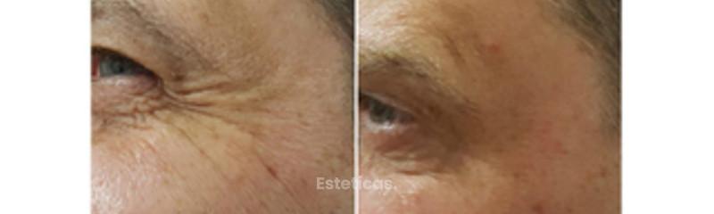 Fotos de antes y despues de aplicación de toxina botulínica