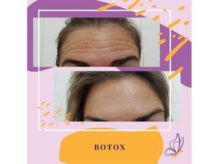 Antes y despues, Botox en Frente