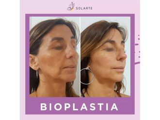 Rejuvenecimiento facial-647753