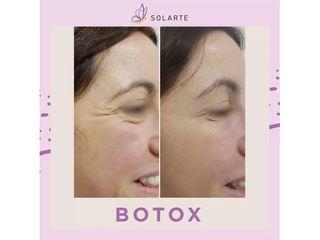 Antes y después, Botox patas de gallo