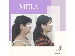 MELA - Dra. Haylen Lozano Solarte