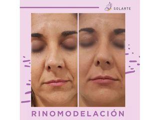 Rinomodelación - Dra. Haylen Lozano Solarte