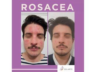 Rosácea-701055
