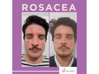 Rosácea - Dra. Haylen Lozano Solarte