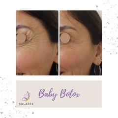 Botox - Dra. Haylen Solarte