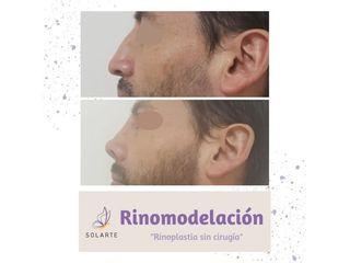 Rinomodelación - Dra. Haylen Lozano
