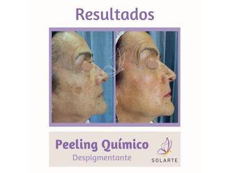 Peeling-794489