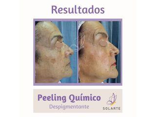Peeling Químico Despigmentante- Dra. Haylen Lozano