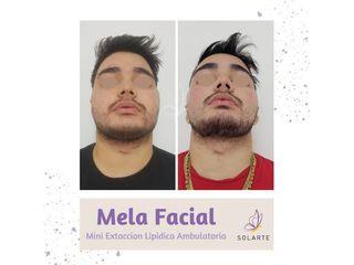 MELA Facial - Dra. Haylen Lozano
