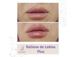 Relleno de Labios Plus - Dra. Haylen Lozano