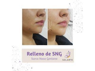 Relleno Surco Naso Geniano - Dra. Haylen Lozano