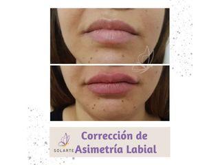 Corrección de Asimetría Labial - Dra. Haylen Lozano