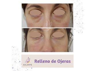 Rellenos faciales-794497