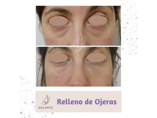 Relleno de Ojeras - Dra. Haylen Lozano