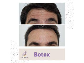 Botox - Dra. Haylen Lozano