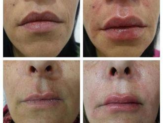 Rellenos faciales - 627110