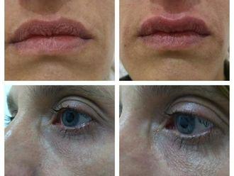 Rellenos faciales - 627111