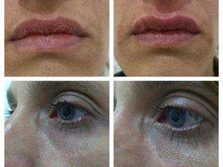 Relleno de labios y surco de ojeras
