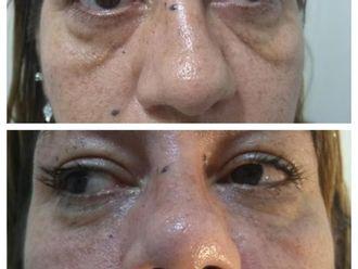 Rellenos faciales - 627244