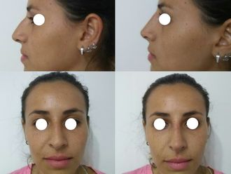 Rellenos faciales - 633703