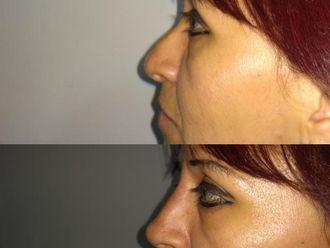 Rellenos faciales - 634262
