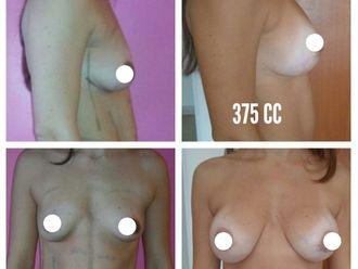 Aumento mamas - 636124