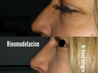 Rinomodelacion