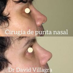 Rinoplastia - Dr. David Villagra