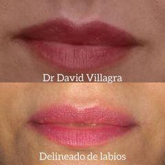 Relleno de labios - Dr. David Villagra
