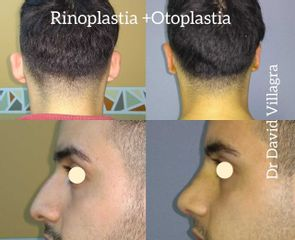 Rinoplastia + Otoplastia - Dr. David Villagra