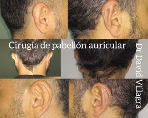 Otoplastia - Dr. David Villagra