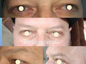 Blefaroplastia - 742270