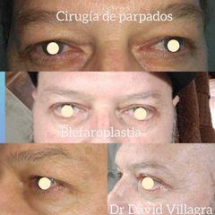 Blefaroplastia - Dr. David Villagra