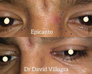 Verrugas - Dr. David Villagra