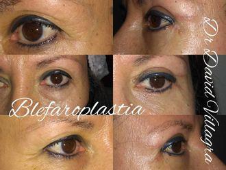Blefaroplastia - 797776