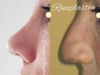 Rinoplastia - 797777