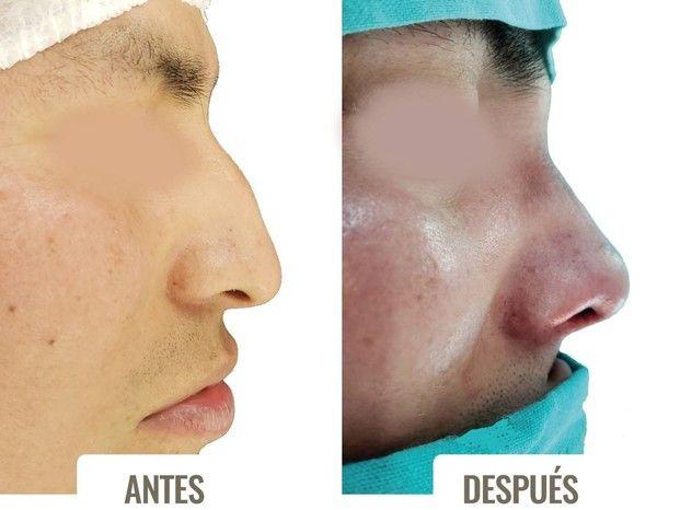 Dr. Diego Sturletti Especialista en Cirugía Plástica y Reparadora