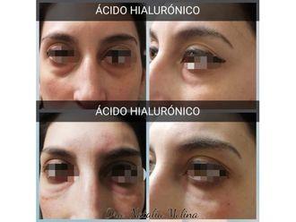 Ácido hialurónico-643494