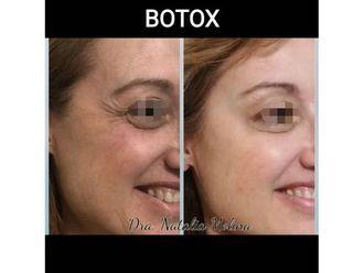 Botox-646786