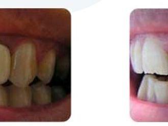 Blanqueamiento dental-275735