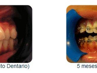 Ortodoncia-275737