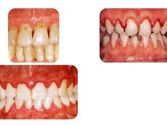 Blanqueamiento dental-275738