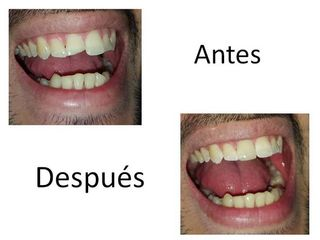 Restauración dental estética del central superior.
