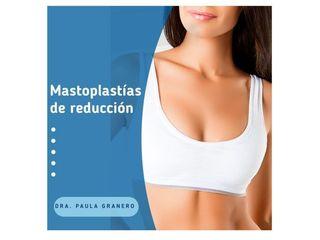 Mastoplastías de reducción