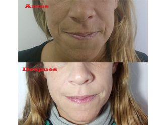 Rejuvenecimiento facial-661172