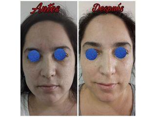 Plasma Rico en Plaquetas - Dra. Paula Granero