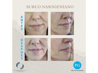 Relleno surco nasogeniano - Dra. Paula Granero