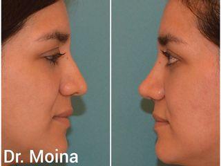 Dr. Moina - Rinoplastia