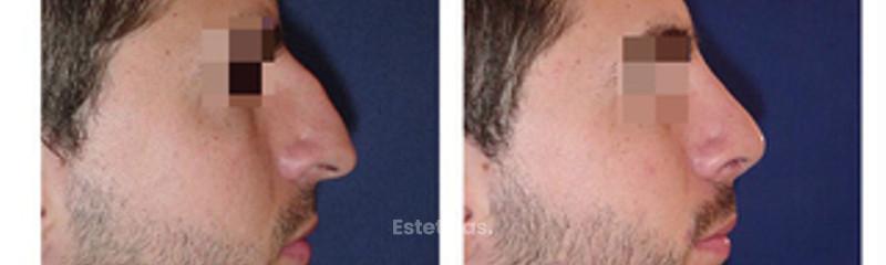Rinoplastia y Mentón Implante