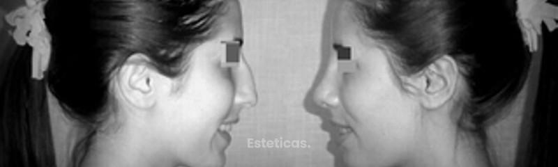 Estética de Nariz Rinoplastia